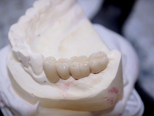 Chirurgie / Implantologie